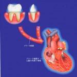 口の細菌が心臓の病気に関係しますの詳細へ
